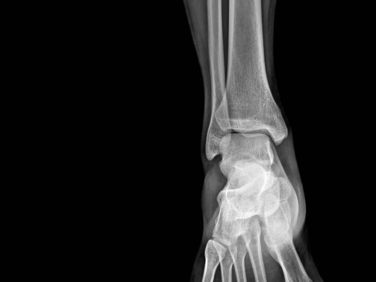 Case study research arthritis foot xray