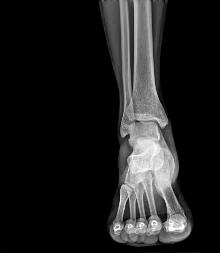 Case study research arthritis foot xray